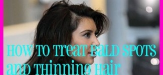 Tips to Treat Bald Spots and Thinning Hair