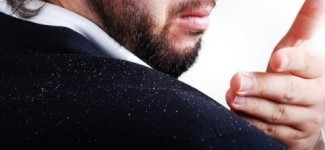 Dandruff Home Remedies for Men